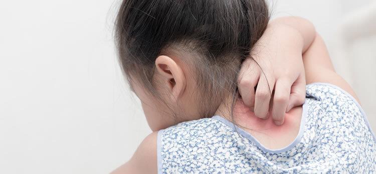 小児(乳幼児含む)皮膚科